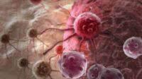 Karsinoma dan Sarkoma, Apa Perbedaan Kedua Jenis Kanker Ini?